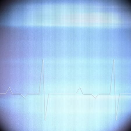ekg graph on old display screen as vintage background grid texture to insert text or design own conception Stock Photo
