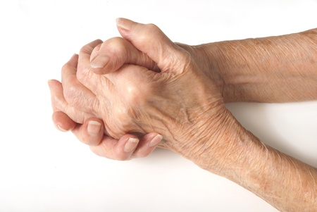 arthritis: Old Ladies hands clasped - My mother at 90 years old with arthritic hands