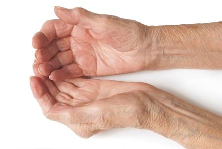 80s adult: Manos ancianas - Mi madre de 90 a�os de edad con las manos artr�ticas