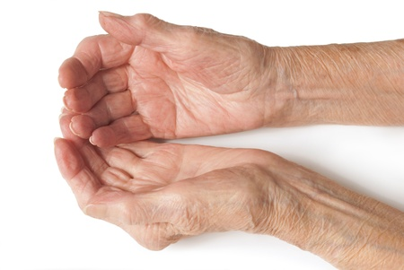 Old Ladies hands - My mother at 90 years old with arthritic hands photo