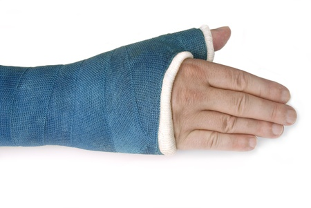 fracture arm: Broken wrist, arm with a blue fiberglass cast on a white background