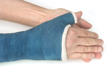 broken wrist: Broken wrist, arm with a blue fiberglass cast - My broken wrist