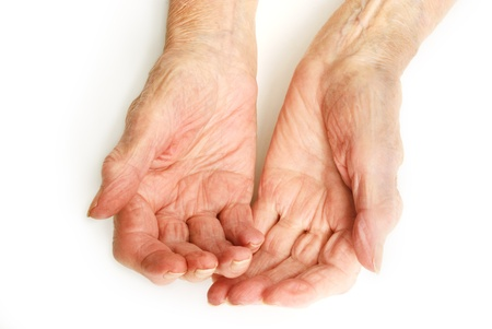 arthritic: Old Lady s hands open - My mother at 90 years old with arthritic hands Stock Photo