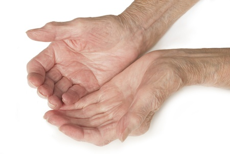 Senior Old Lady s Hands Open - My mother at 90 years old with arthritic hands photo