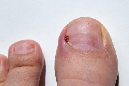 closeup of a sore toe nail inflamation 写真素材