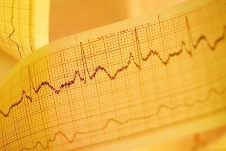 Electrocardiogram print