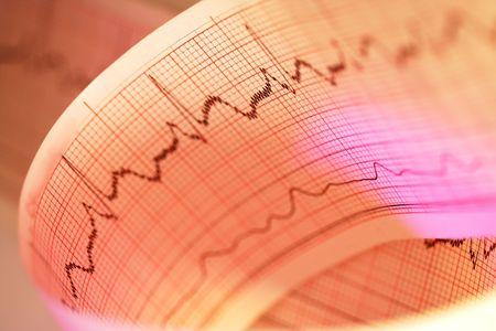 Electrocardiogram-ECG Print Фото со стока