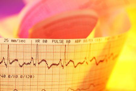 Electrocardiogram-ECG