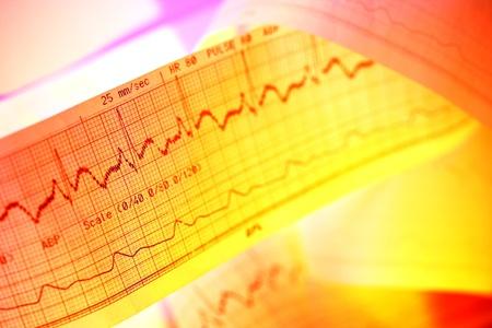 ECG-electrocardiogram reading