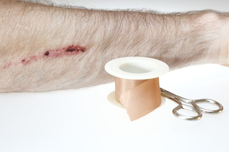 hairy arms: Little wound in the arm.Plaster and scissors