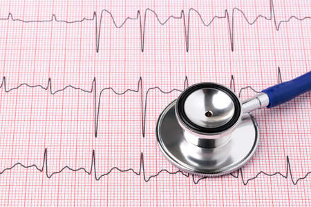 ecg: Photo of an electrocardiogram ECG or EKG printout with stethoscope
