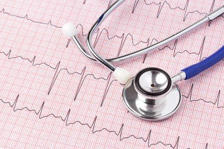 angina: Foto von einem Elektrokardiogramm EKG oder EKG-Ausdruck mit Stethoskop