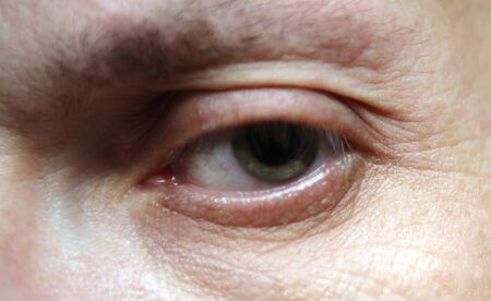 eye of man photo