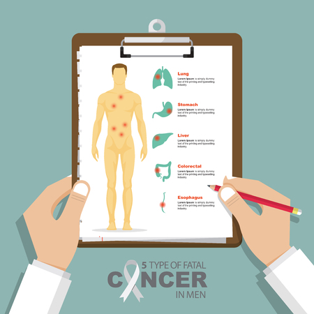 infographic for top 5 type of fatal cancer in men in flat design. Clipboard in doctor hand. Medical and health care report. Vector Illustration. Stock Illustratie