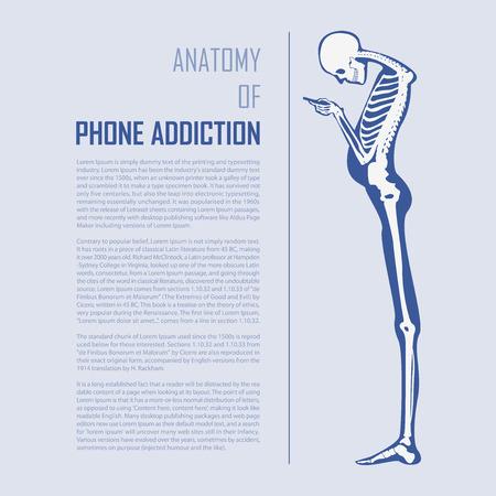 평면 디자인의 스마트 폰 중독 인포 그래픽. 인간의 뼈 해부학. 벡터 일러스트 레이션