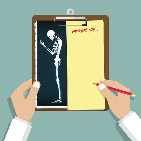 A Smartphone Addiction Infographic in flat design. Unhealthy effects of your phone. Human bone anatomy. Clipboard in doctor hand. Medical and health care report. Vector Illustration.