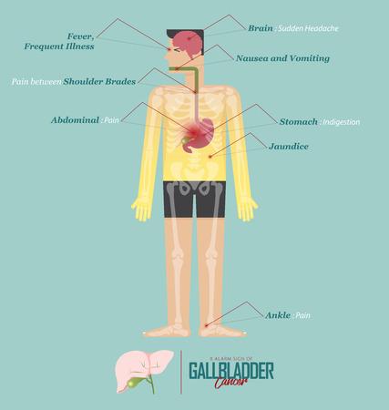 Alarm signs of Gallbladder cancer infographic in flat design. Gallbladder cancer disease symptom icon set with human body, skeleton and organ. Vector Illustration.