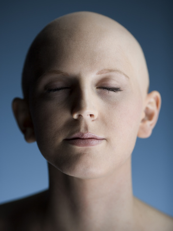Close-Up Of A Bald Young Woman With Her Eyes Closed