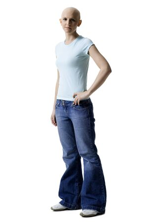 Portrait Of A Bald Young Woman Standing With Her Hand On Her Waist LANG_EVOIMAGES