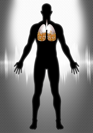 smoking: Human Lung Full With Cigarette Butts  Stock Photo