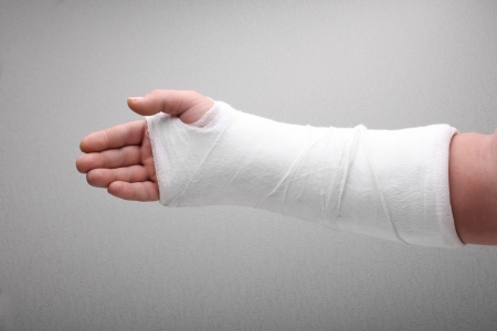 beenbreuk: gebroken arm been in gegoten Stockfoto