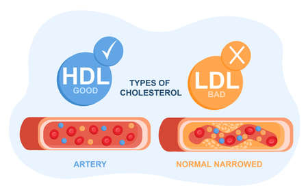 Types of cholesterol in the blood concept. High-and low-density lipoproteins. Section of a healthy and narrow artery. Prevention of atherosclerosis. Flat vector illustration on a white background