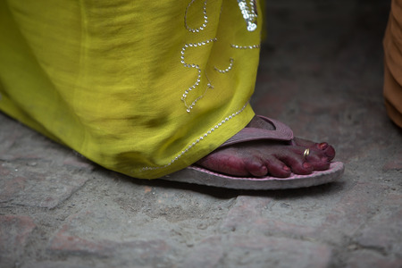 priceless: feet of a poor child