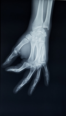 x rays negative: Hand x-ray view on a black background Stock Photo