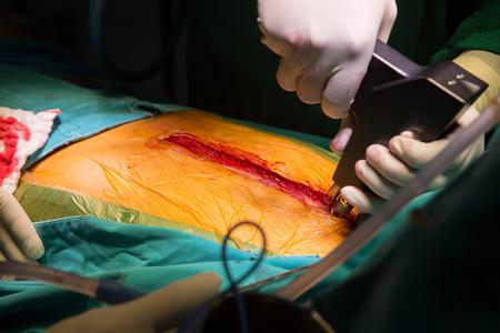 suture: suture close sternotomy incision Stock Photo