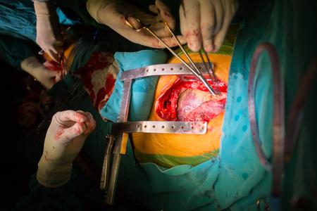 mammary: coronary artery bypass grafting