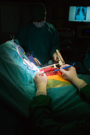 bypass: Surgery for Coronary Artery Bypass Grafting: CABG