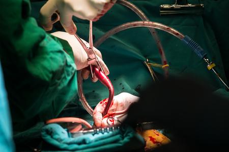 artery: coronary artery bypass grafting
