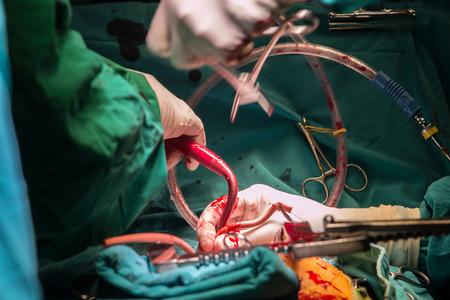 bypass: coronary artery bypass grafting