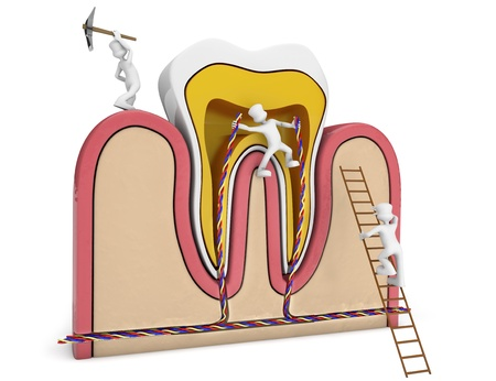 chambers: germs destroying a schematic tooth section Stock Photo