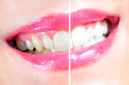 clean teeth: Before and after of a dental whitening procedure Stock Photo