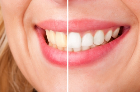 dentition: Before and after of a dental whitening procedure Stock Photo
