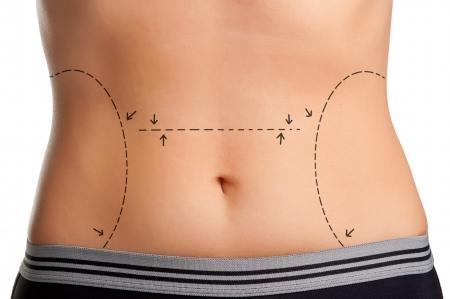 배는 성형 수술에 대한 표시