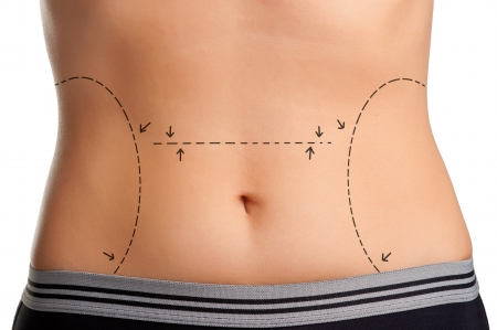 correction lines: Tummy marked for plastic surgery Stock Photo