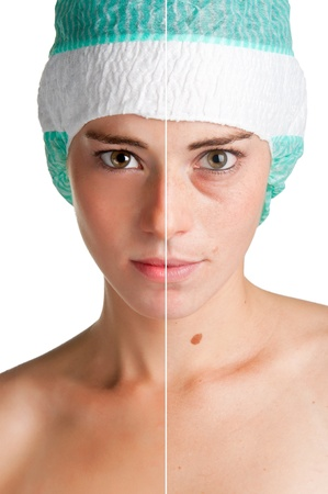 Before and after portrait of a young woman that undergone a skin treatment photo