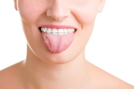 Close-up van een mond met beugels aan theeth en de tong uit, geïsoleerd in het wit