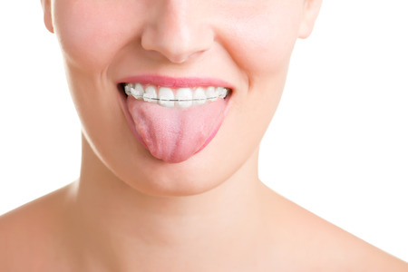 Closeup of a mouth with braces on theeth and the tongue out, isolated in white Stock Photo