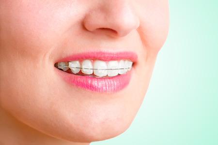 orthodontics: Primer plano de una boca con tirantes en los dientes y la lengua fuera, aislado en verde
