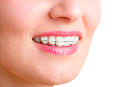 Closeup of a mouth with braces on teeth and the tongue out, isolated in green Stock Photo