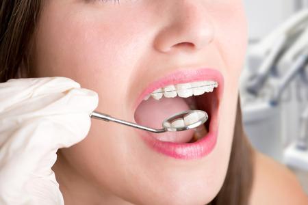 Close-up van een tandarts handen over een procedure te doen op een patiënt Stockfoto