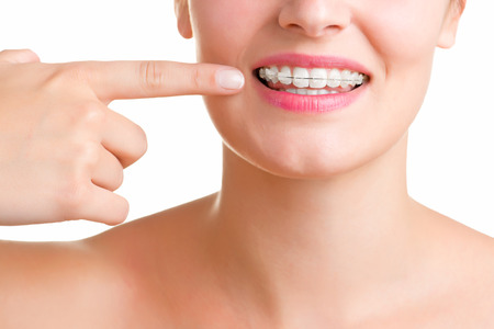 fix jaw: Closeup of a mouth with braces on teeth, isolated in white Stock Photo