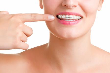 ortodoncia: Primer plano de una boca con los frenos en los dientes, aislados en blanco Foto de archivo