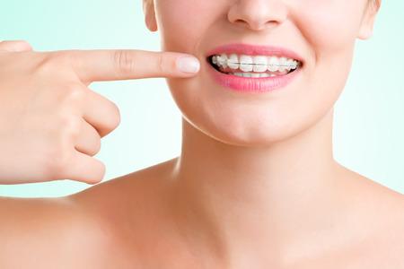 Detailní záběr na ústa s rovnátka na zubech, izolován v zelené Reklamní fotografie