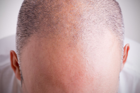 hombre calvo: Vista superior de la cabeza de un hombre con una línea del pelo del retroceso