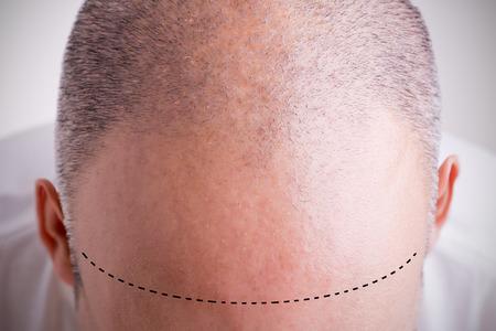 calvo: Vista superior de la cabeza de un hombre con una línea del pelo del retroceso con una rayita marcada Foto de archivo