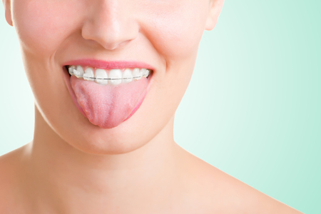 Closeup of a mouth with braces on teeth and the tongue out, isolated in white Stock Photo